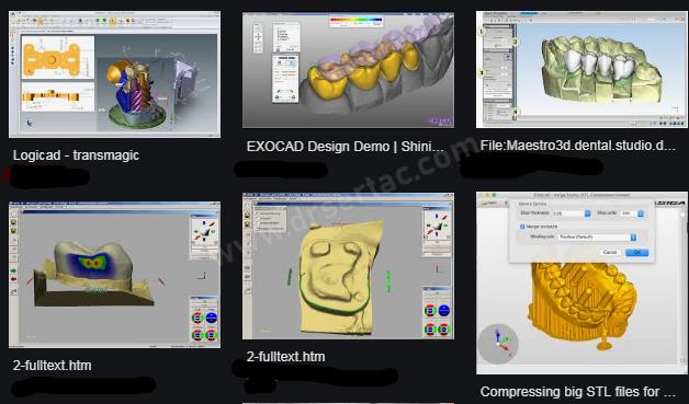 Bilgisayarlı Zirkonyum Diş Tasarımı