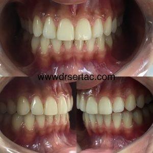 Zirkonyum Diş Kaplama Önce ve Sonra