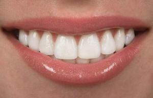 Lamine Estetik Diş Kaplama
